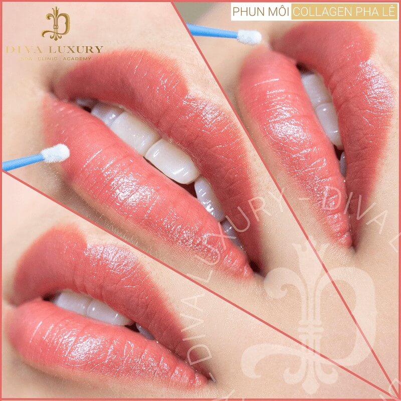 Phun môi Collagen đem lại đôi môi căng mọng, tươi tắn