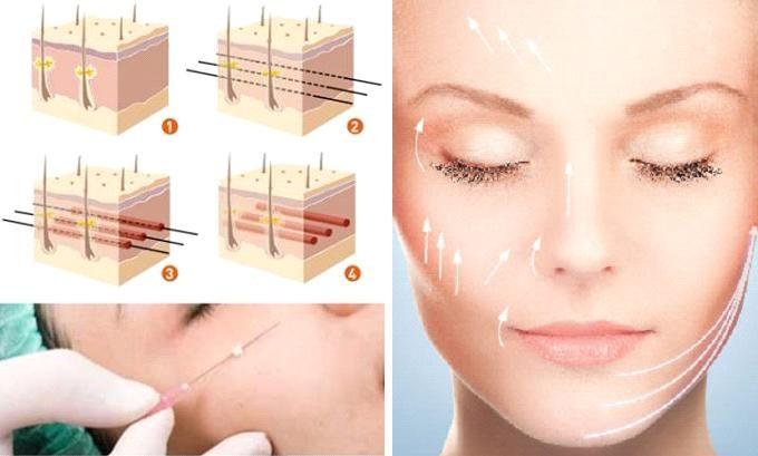 Phương pháp căng da bằng chỉ có làm bạn trẻ lại? 1