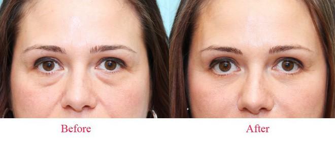 Bóc mỡ mí mắt chống sụp mí, trẻ hóa khuôn mặt 2