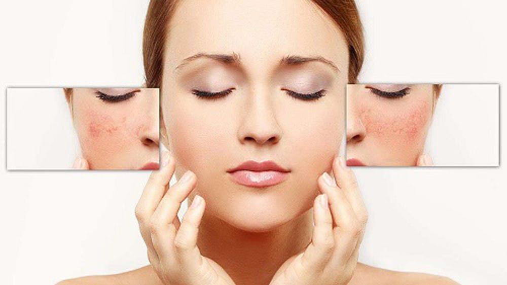 Đọc ngay cách cai nghiện corticoid để giải cứu cho làn da của bạn 2