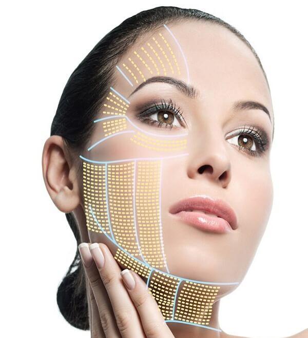 Có nên làm đẹp bằng cách căng da mặt bằng chỉ vàng không? 1
