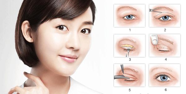 Cách khắc phục cho mí mắt bị sụp hiệu quả nhanh chóng