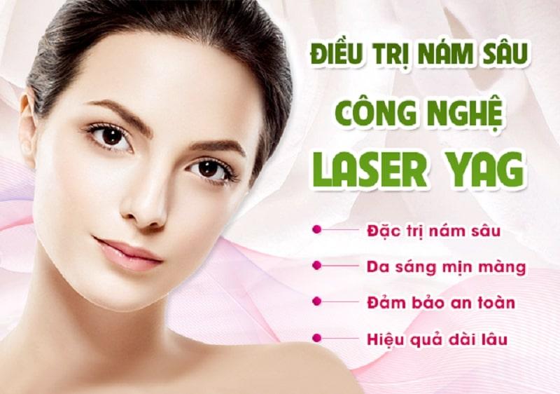 Công nghệ điều trị nám Laser Nd Yagc