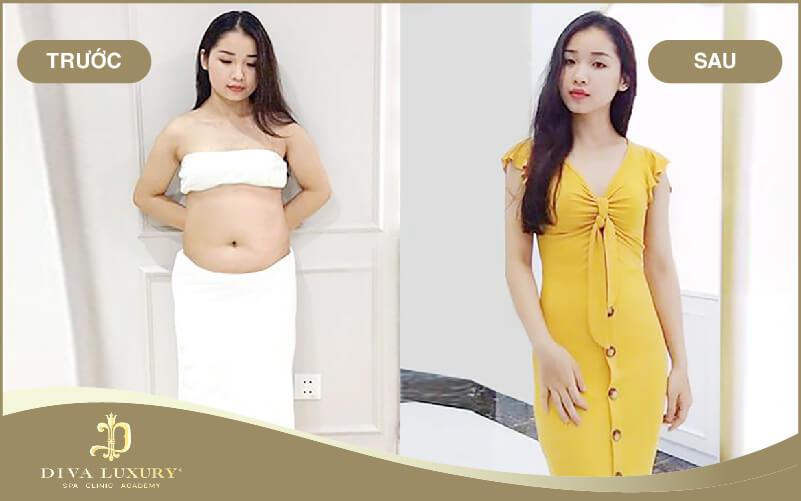 Hình ảnh khách hàng sử dụng giảm béo bụng tại Diva