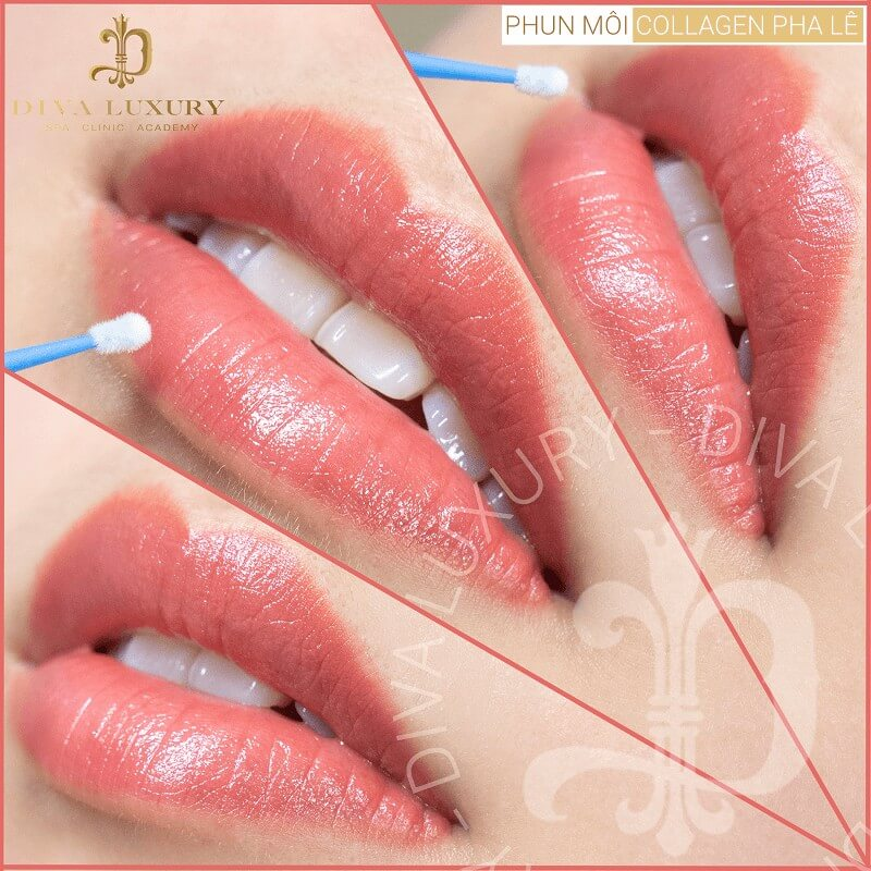 phun môi collagen là gì